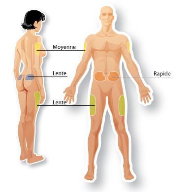 Zone d'injection de l'insuline...